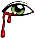 eye bleeding random
